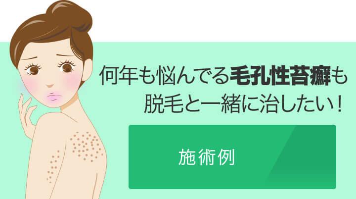 何年も悩んでる毛孔性苔癬も医療脱毛と一緒に治したいお客様