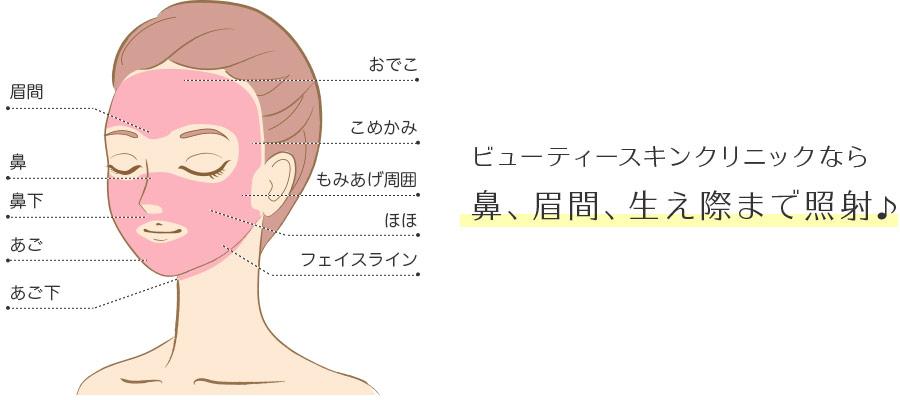 ビューティースキンクリニックなら鼻、眉間、生え際まで照射