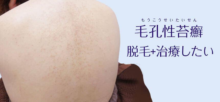 毛孔性苔癬があっても脱毛できる?一緒に治療もできる?
