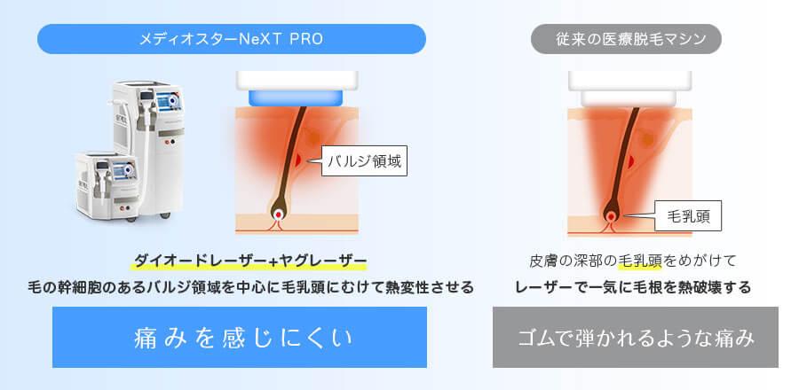 メディオスターNeXT PROはダイオードレーザー+ヤグレーザーで毛の幹細胞のあるバルジ領域を中心に毛乳頭にむけて熱変性させるので痛みを感じにくい