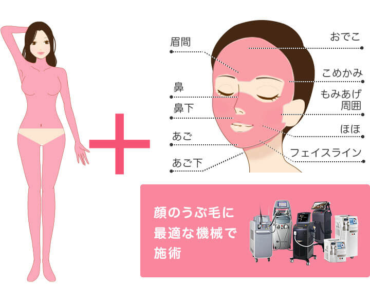 メディオスター・ソプラノ選べる 全身+顔 医療脱毛 4回完了プランの照射範囲 顔のうぶ毛に最適な機械で施術