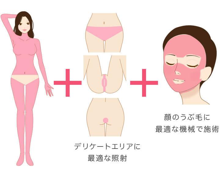 メディオスター・ソプラノ選べる 全身+VIO+顔 医療脱毛 4回完了プランの照射範囲 デリケートエリア、顔のうぶ毛に最適な機械で施術