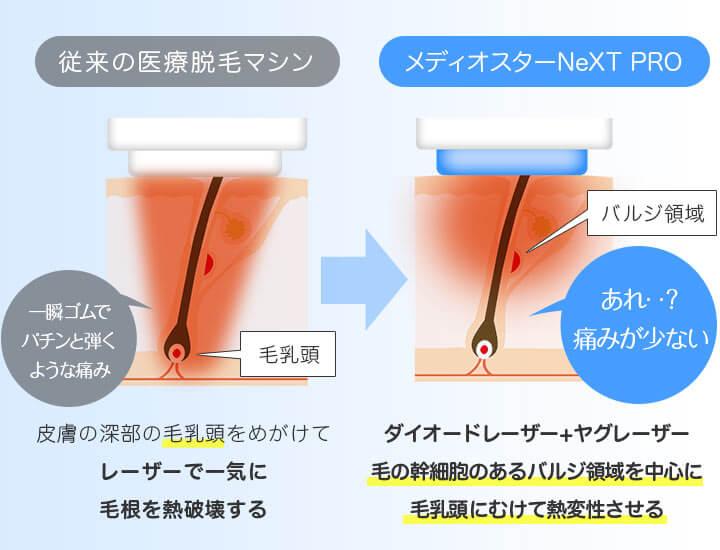 メディオスターNeXT PROはダイオードレーザー+ヤグレーザーで毛の幹細胞のあるバルジ領域を中心に毛乳頭にむけて熱変性させるので痛みが少ない