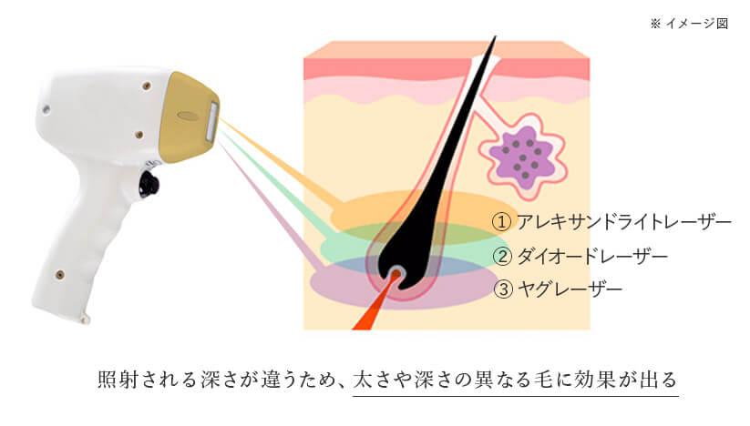 ソプラノチタニウム 異なる3つの波長をブレンドして照射