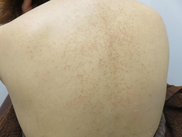 背中にできた毛孔性苔癬
